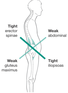 upper-and-lower-crossed-syndrome11-e1453210763973-219x300.png
